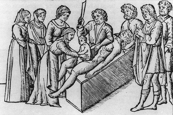 Sezaryen doğumun ilginç tarihçesi #3