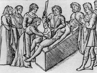 Sezaryen doğumun ilginç tarihçesi